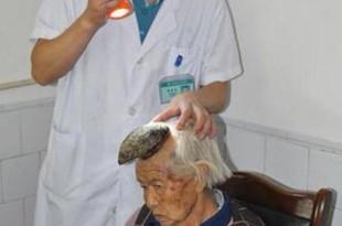 Une corne de 13 cm a poussé sur la tête d'une Chinoise