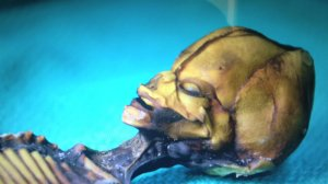 L'ADN de l'extraterrestre humanoïde d'Atacama a été analysé