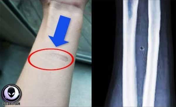"""Vidéo: Des personnes découvrent des marques étranges """"d'implants"""" sur leur avant-bras"""